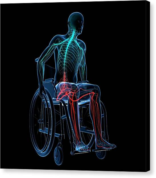 Man In A Wheelchair Canvas Print by Sciepro/science Photo Library