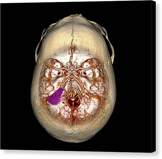 X Ray Canvas Print - Brain Tumour by Zephyr