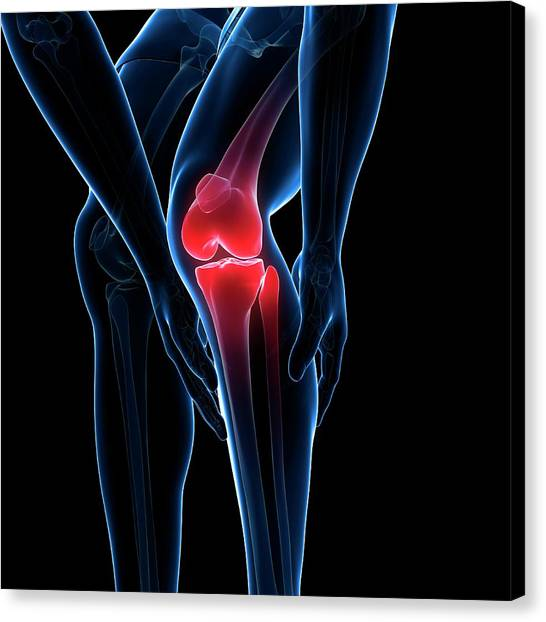 Painful Knee Canvas Print by Sciepro/science Photo Library