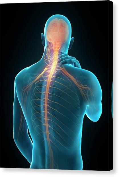Human Neck Pain Canvas Print by Sebastian Kaulitzki/science Photo Library