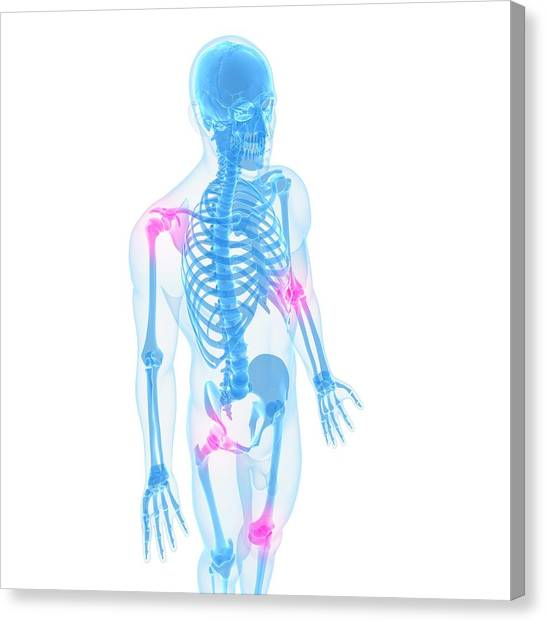 Joint Pain, Conceptual Artwork Canvas Print by Sciepro