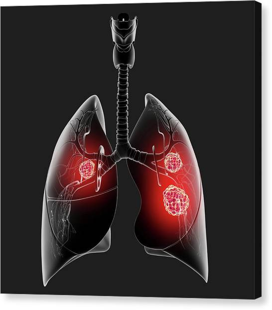Lung Cancer Canvas Print by Pixologicstudio/science Photo Library