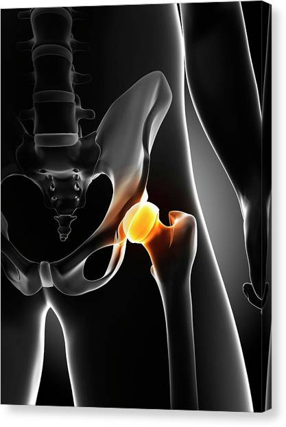 Hip Pain Canvas Print by Sciepro/science Photo Library