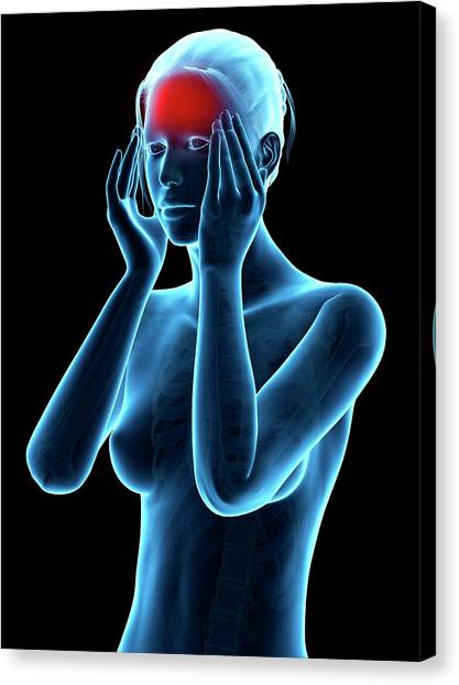 Human Headache Canvas Print by Sebastian Kaulitzki