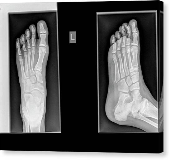 Ankles Canvas Print - Ankle X-ray by Photostock-israel