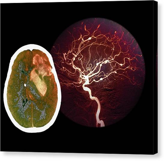 Brain Haemorrhage From Aneurysm Canvas Print by Zephyr/science Photo Library