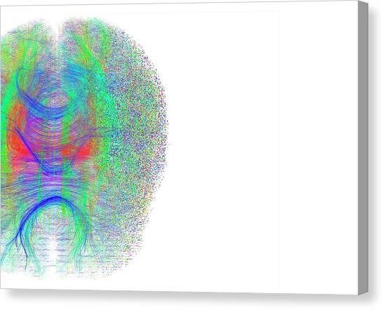 Pixelated Canvas Print - Brain White Matter Fibres Dissolving by Alfred Pasieka/science Photo Library