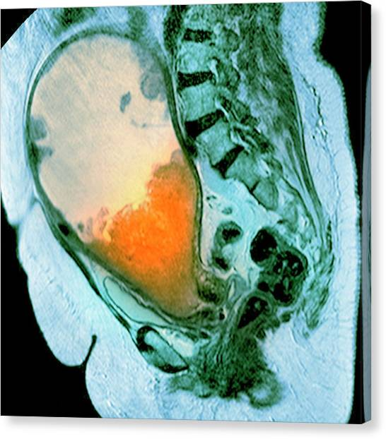 Cancer Of The Uterus Canvas Print by Du Cane Medical Imaging Ltd/science Photo Library