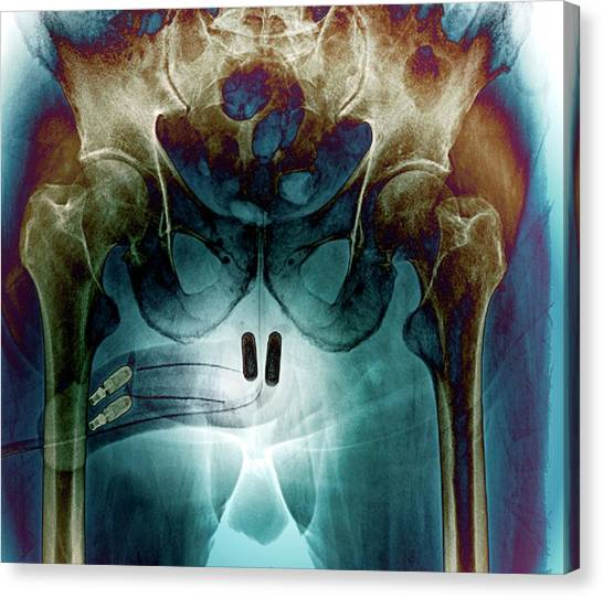 Groin Canvas Print - Incontinence Implant by Zephyr