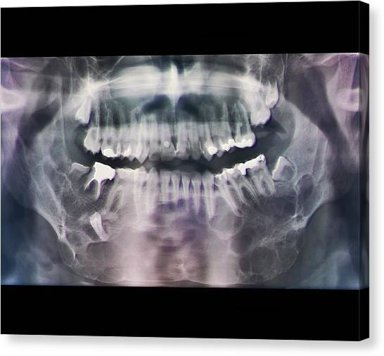 Jaw Cancer (ameloblastoma) Canvas Print by Zephyr/science Photo Library