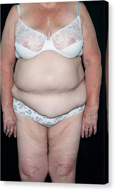 07c918fc8 Obese Woman In Her Underwear Canvas Print by Dr P. Marazzi science Photo  Library