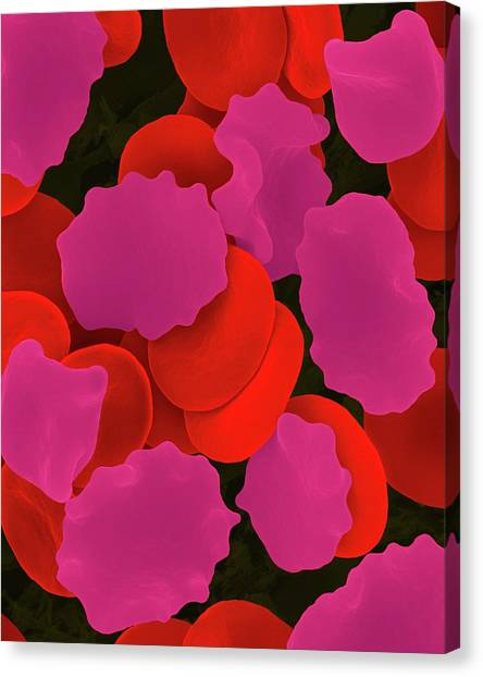 Red Blood Cells In Hypertonic Solution Canvas Print by Dennis Kunkel Microscopy/science Photo Library