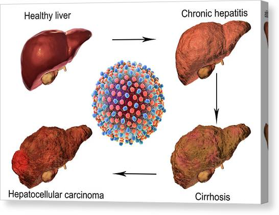 3d Visualization Canvas Print - Stages Of Liver Disease In Hepatitis C by Kateryna Kon/science Photo Library