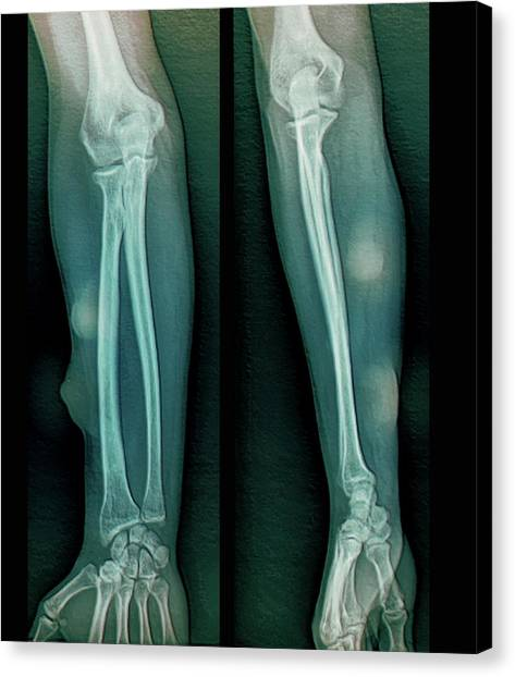 Neoplasm Canvas Print - Subcutaneous Lipomas On The Arm by Zephyr/science Photo Library