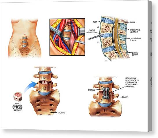 Groin Canvas Print - Surgery To Fuse The Lumbar Spine by John T. Alesi