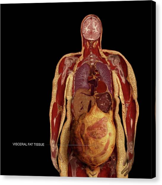 Visceral Fat Photograph by Anatomical Travelogue