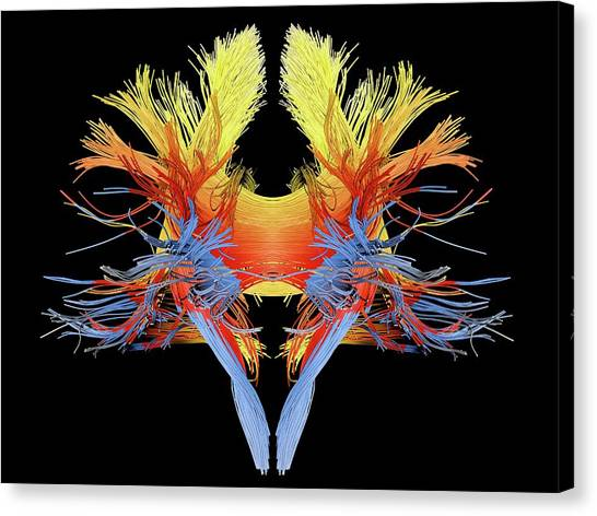 Brain Canvas Print - White Matter Fibres Of The Human Brain by Alfred Pasieka