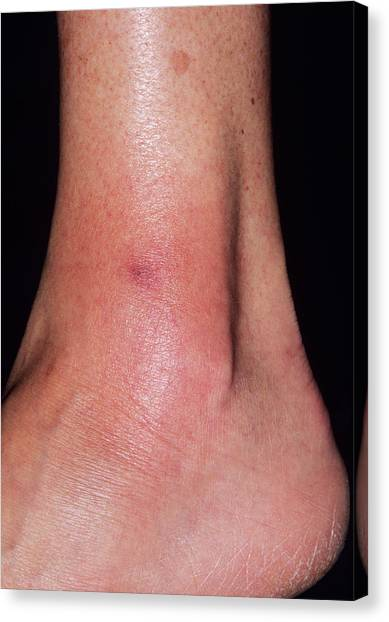 Cellulitis Canvas Print by Dr P. Marazzi/science Photo Library