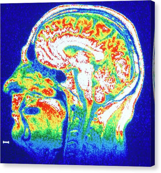 False-colour Nmr Scan Of The Head Canvas Print by Cnri/science Photo Library