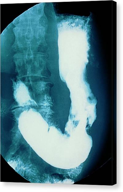 Abdomen Canvas Print - Stomach Cancer by Gjlp