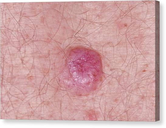 67 Canvas Print - Basal Cell Carcinoma Skin Cancer by Dr P. Marazzi/science Photo Library