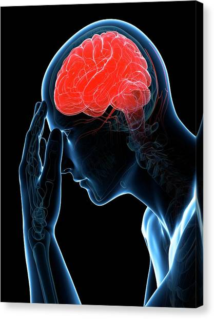 Headache Canvas Print by Sciepro/science Photo Library
