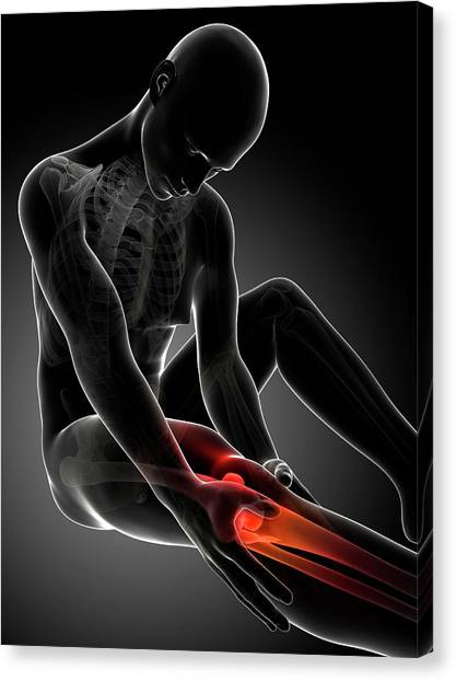 Human Knee Pain Canvas Print by Sebastian Kaulitzki