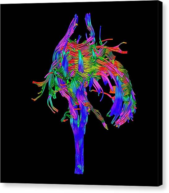 Brain Tumour Canvas Print by Simon Fraser/science Photo Library