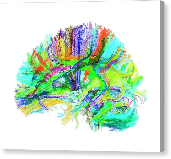 Advanced Mri Brain Scan Canvas Print by Philippe Psaila/science Photo Library