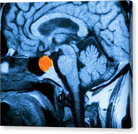 Neoplasm Canvas Print - Brain Tumour by Zephyr/science Photo Library