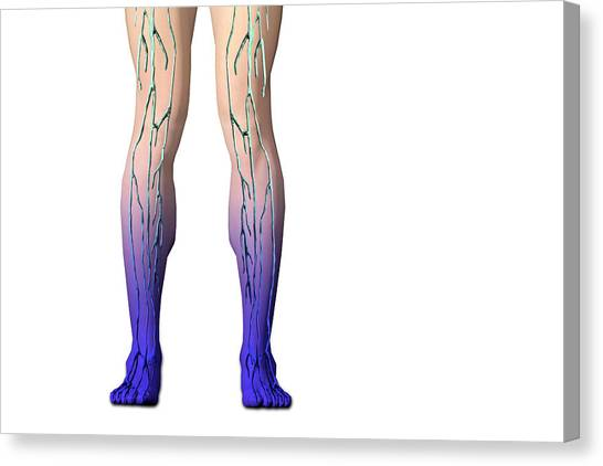 Diabetes Canvas Print - Diabetic Neuropathy by Carol & Mike Werner