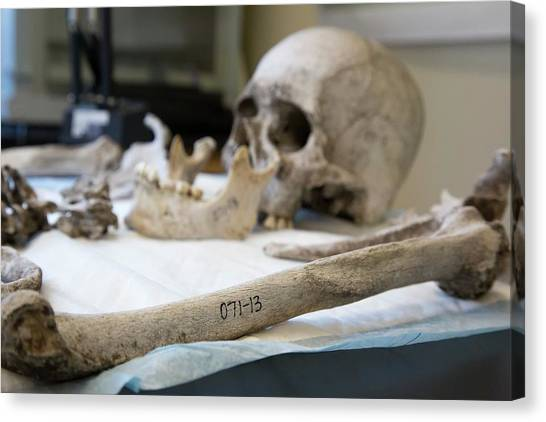 Baylor University Canvas Print - Human Remains In A Forensics Laboratory by Jim West