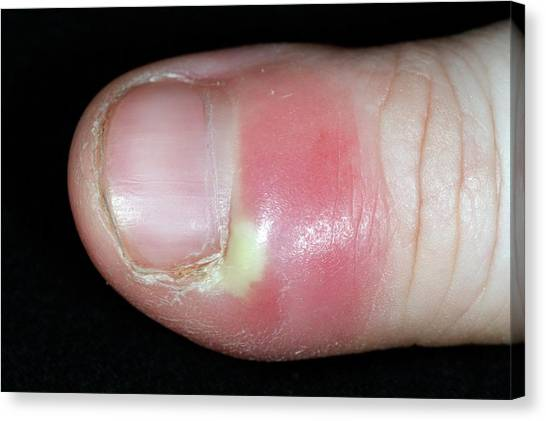 Paronychia Infection Of The Thumb Canvas Print by Dr P. Marazzi/science Photo Library