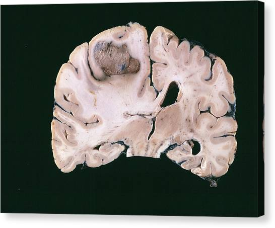 Neoplasm Canvas Print - Secondary Brain Cancer by Cnri/science Photo Library