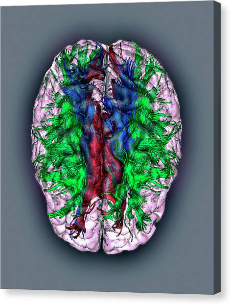 White Matter Fibres Canvas Print by Zephyr/science Photo Library