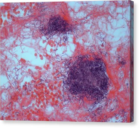Life-threatening Canvas Print - Colitis by Steve Gschmeissner