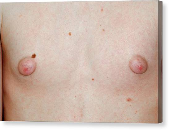 Nipples Canvas Print - Gynaecomastia by Dr P. Marazzi/science Photo Library