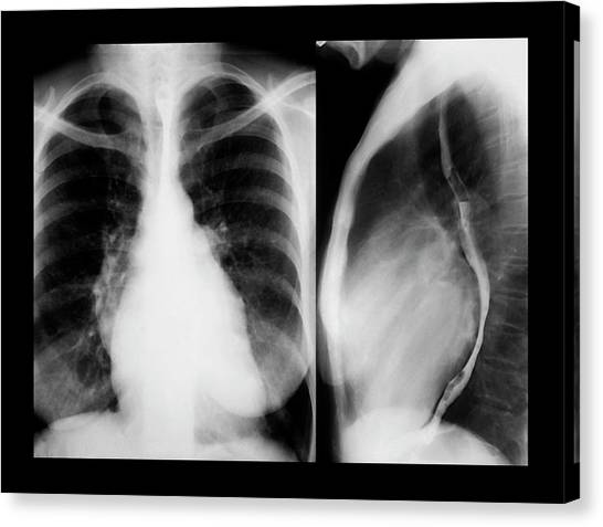 Enlarged Heart Canvas Print by Zephyr/science Photo Library