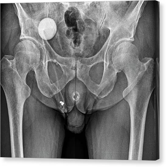 67 Canvas Print - Incontinence Implant by Zephyr/science Photo Library
