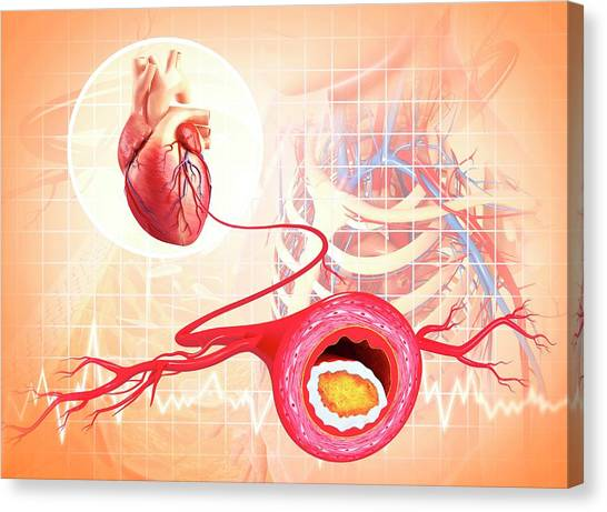 Atherosclerosis Canvas Print by Pixologicstudio/science Photo Library