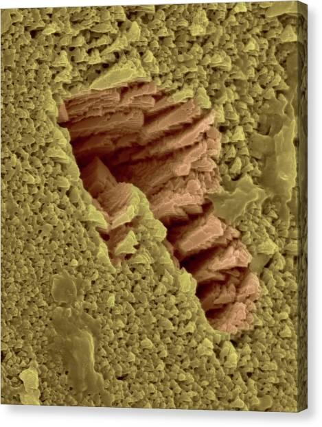 Emus Canvas Print - Emu Eggshell Surface by Dennis Kunkel Microscopy/science Photo Library