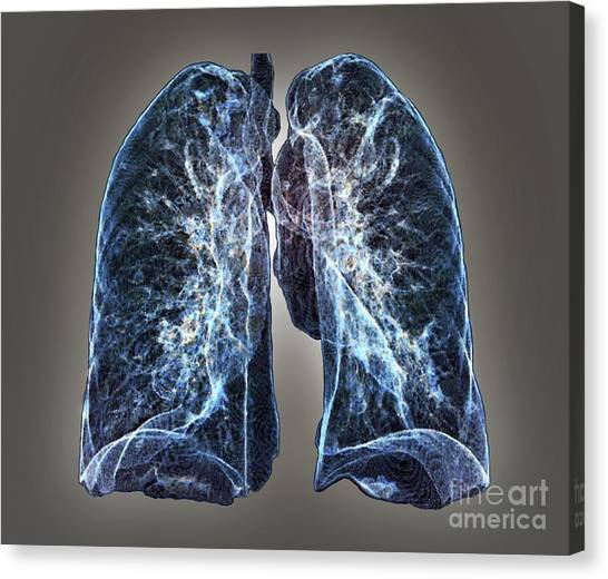 Healthy Lungs 3d Ct Scan Photograph By Zephyr
