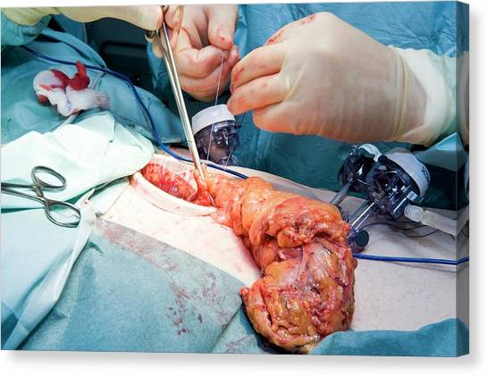 Laparoscopic Colon Cancer Surgery Canvas Print by Dr P. Marazzi/science Photo Library