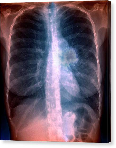 Lung Cancer Canvas Print by Zephyr/science Photo Library