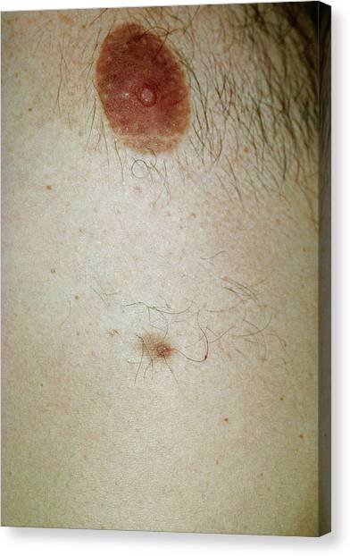 Nipples Canvas Print - Accessory Nipple On A Man's Breast by Dr P. Marazzi/science Photo Library