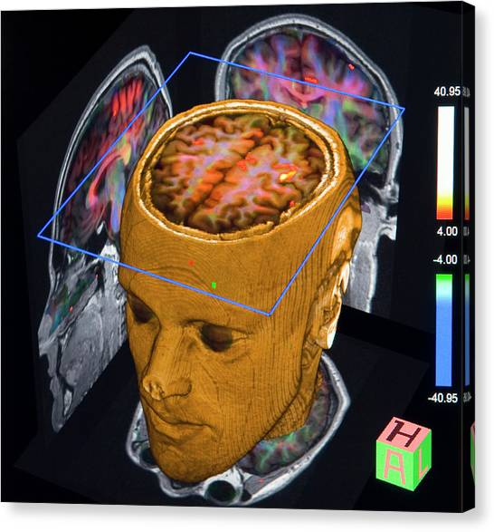 Aspect Canvas Print - Advanced Mri Brain Scans by Philippe Psaila/science Photo Library