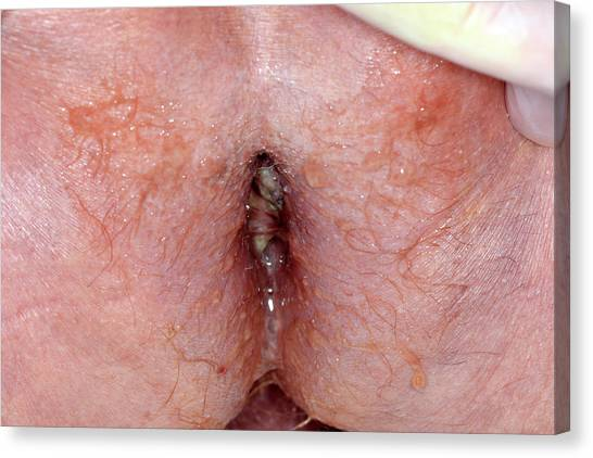 Anal cancer picture — pic 11