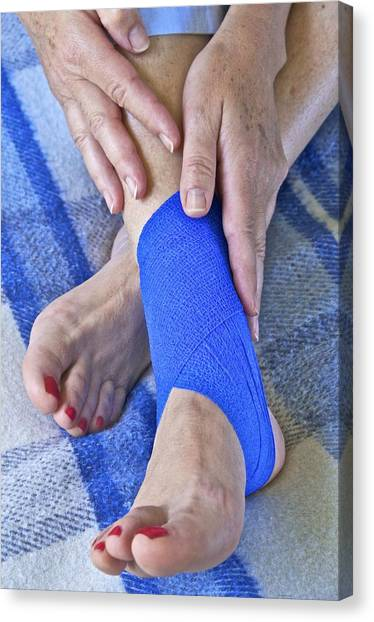 Ankle Injury Canvas Print by Science Photo Library