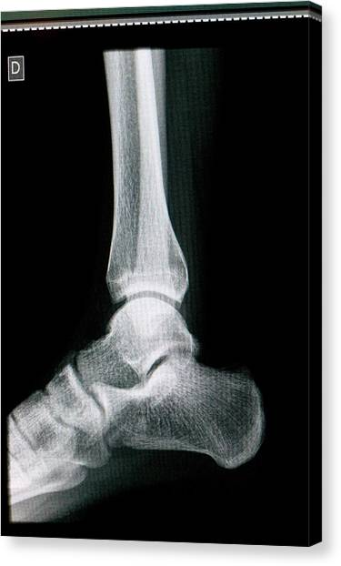 Ankles Canvas Print - Ankle Joint by Mauro Fermariello/science Photo Library