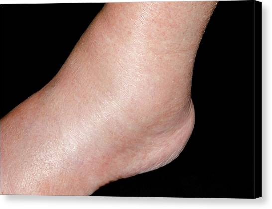 Ankles Canvas Print - Ankle Swelling After Amlodipine Drug by Dr P. Marazzi/science Photo Library